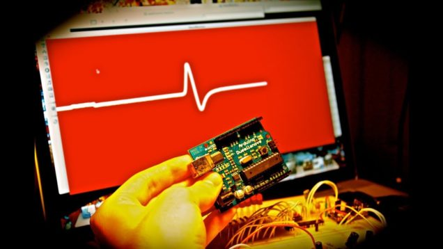 arduino heart rate monitor
